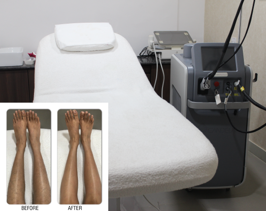 Laser Hair Removal In Chennai